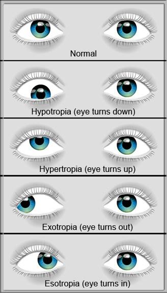 strabismus diagram3