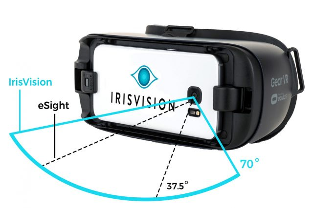 IrisVision UT for eyes