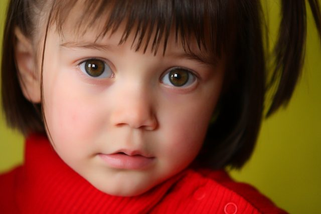 liitle girl in red, suffering from amblyopia
