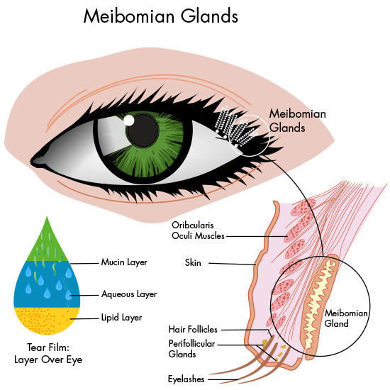 What Is Meibomian Gland Dysfunction