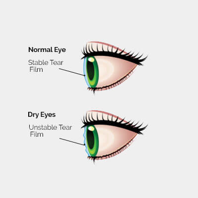 dry-eye-diagram-2a