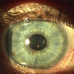 contact lens resized 150×150