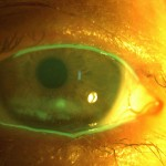 exposure keratitis resized 150×150