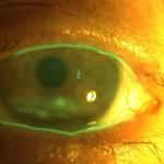 exposure keratitis resized 150×150