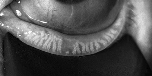 dmi truncated glands surface illumination 72dpi
