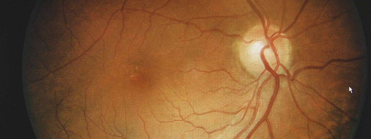 How to treat eye allergy, Eye Care in Washington, IA