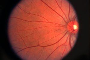 Eye allergy treatment, Eye Doctor in Washington, IA