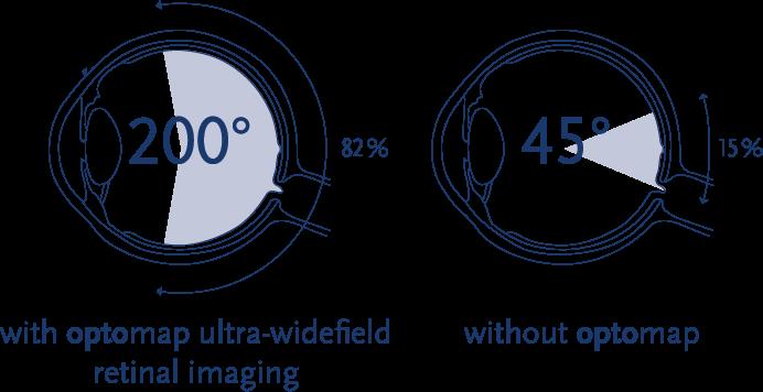 Optomap Degrees Illustration