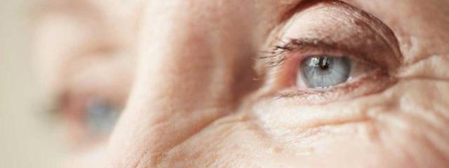 Eye doctor, senior woman eye with diabetic retinopathy in El Segundo, Redondo Beach, CA