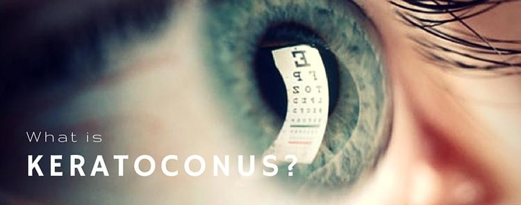 what is keratoconus