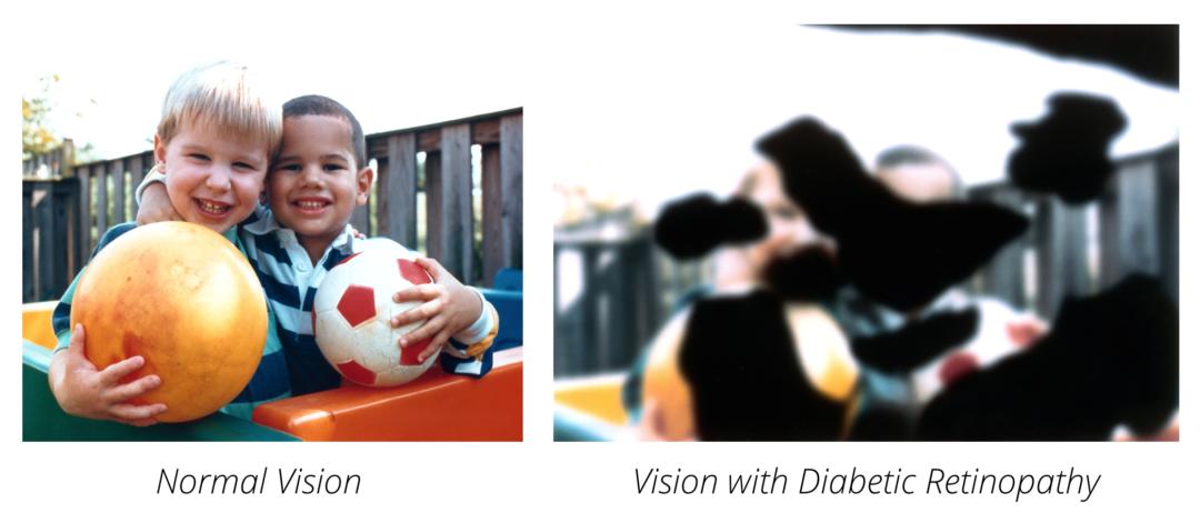 Diabetic Eye Disease Sealy Tx 1 1080×462
