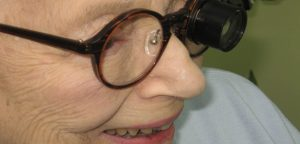 Woman Wearing TeleMicroscope glasses