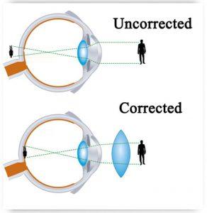 Presbyopia1