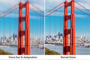 astigmatism vision