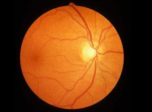 oct retina scan