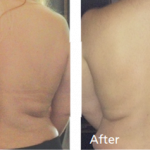 BodyFX Before-After