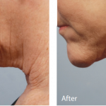 Forma Fractional Thermal Contraction Before/After
