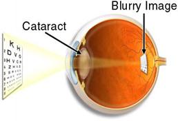 cataract 03