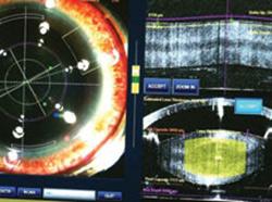 cataract 06