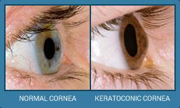 cornea comparison