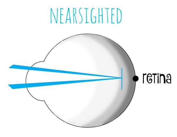 retina nearsighted 600×463