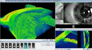 Meastro anterior segment scan