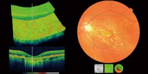 Retinal cross-section