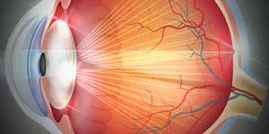 Eye Gallery Catarcts 300x150 300x150