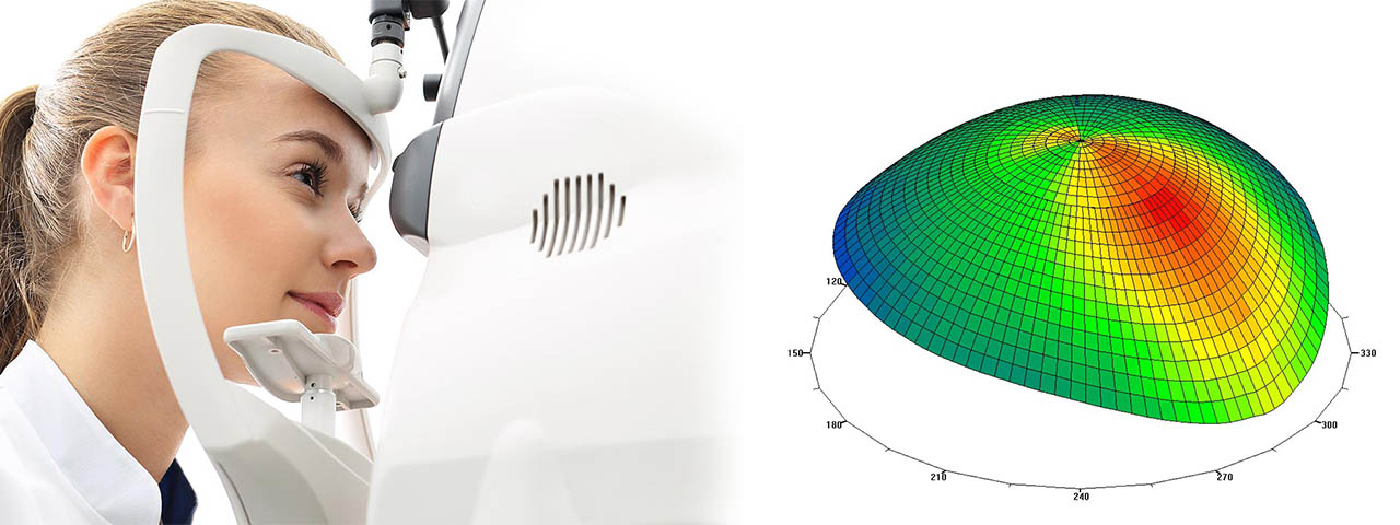 Eye Doctor, Scleral lenses in Westminster, BC