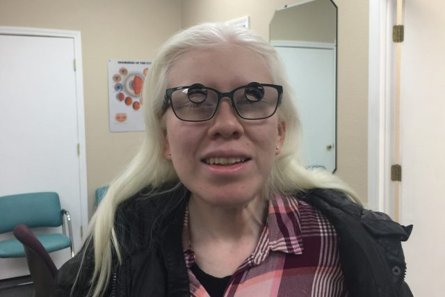 Girl with Albinism and Poor Eyesight