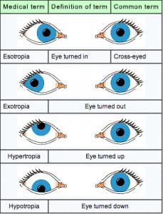 eye turning graphic