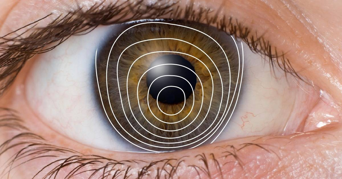 Illustration of keratoconus