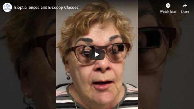 Screenshot 2019 07 21 Bioptic lenses and E scoop Glasses YouTube