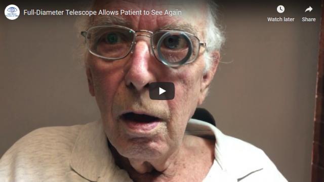 Screenshot 2019 07 21 Full Diameter Telescope Allows Patient to See Again YouTube1
