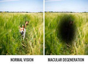 macular degeneration 300×225