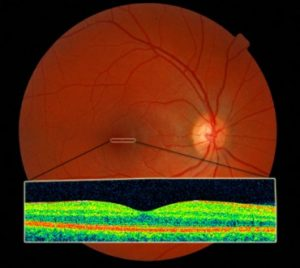 Healthy Retina as seen with Retinal Photography and OCT