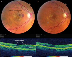 Retinal Hemorrhage as seen with Retinal Photography and OCT