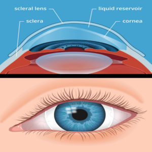 Speciality Contact Lenses