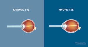Normal and Myopic Eye