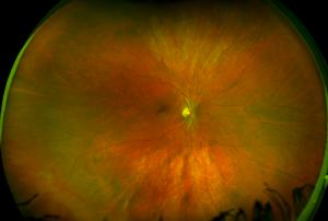 color healthy retina california