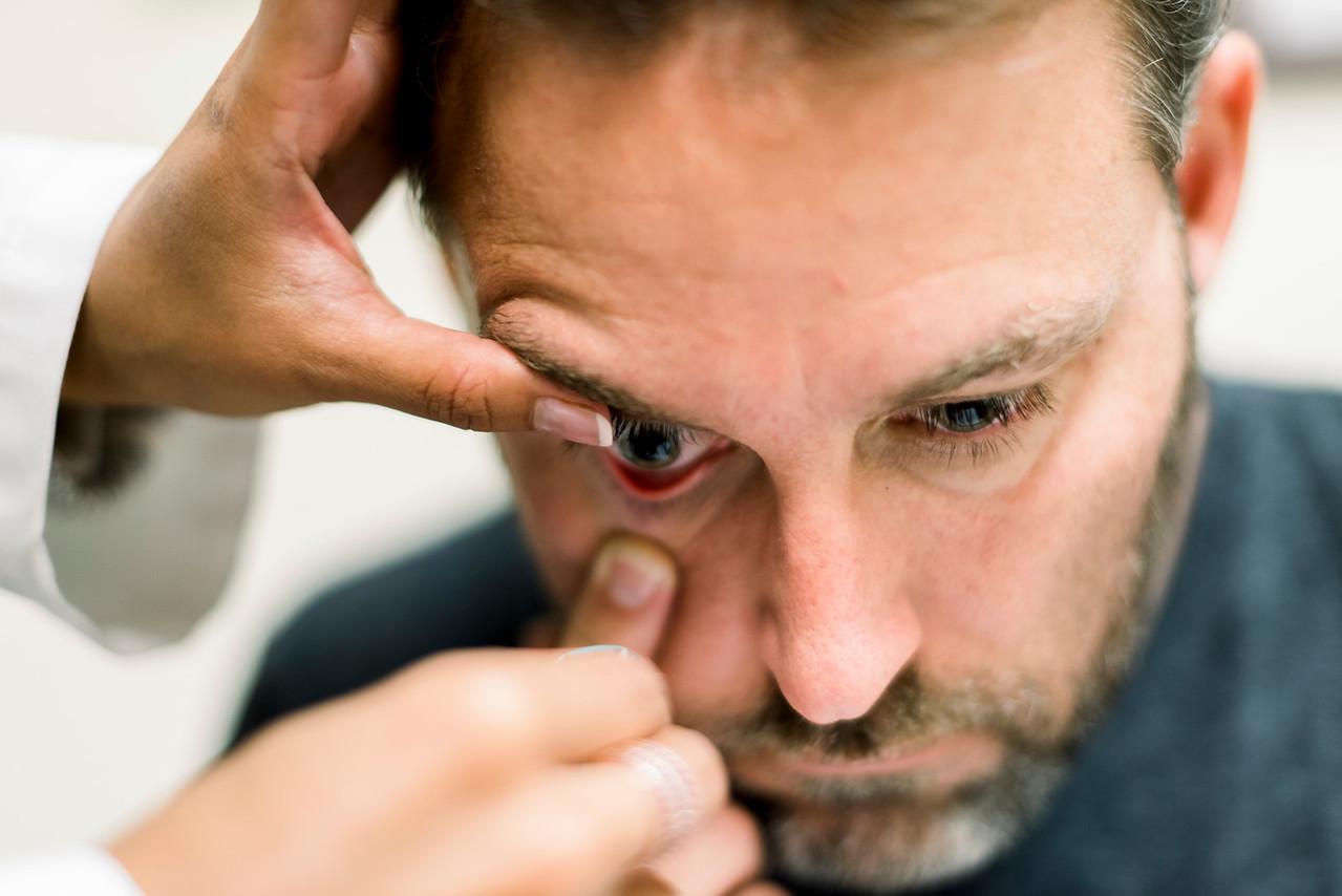 man inserting scleral lens