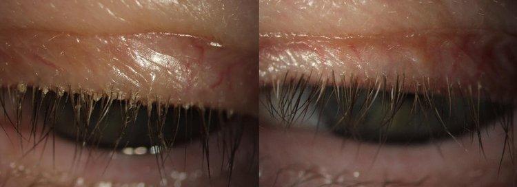 eye lashes showing blepharitis