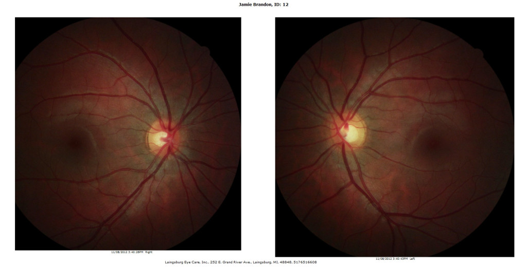 retinalphotos 1024×522