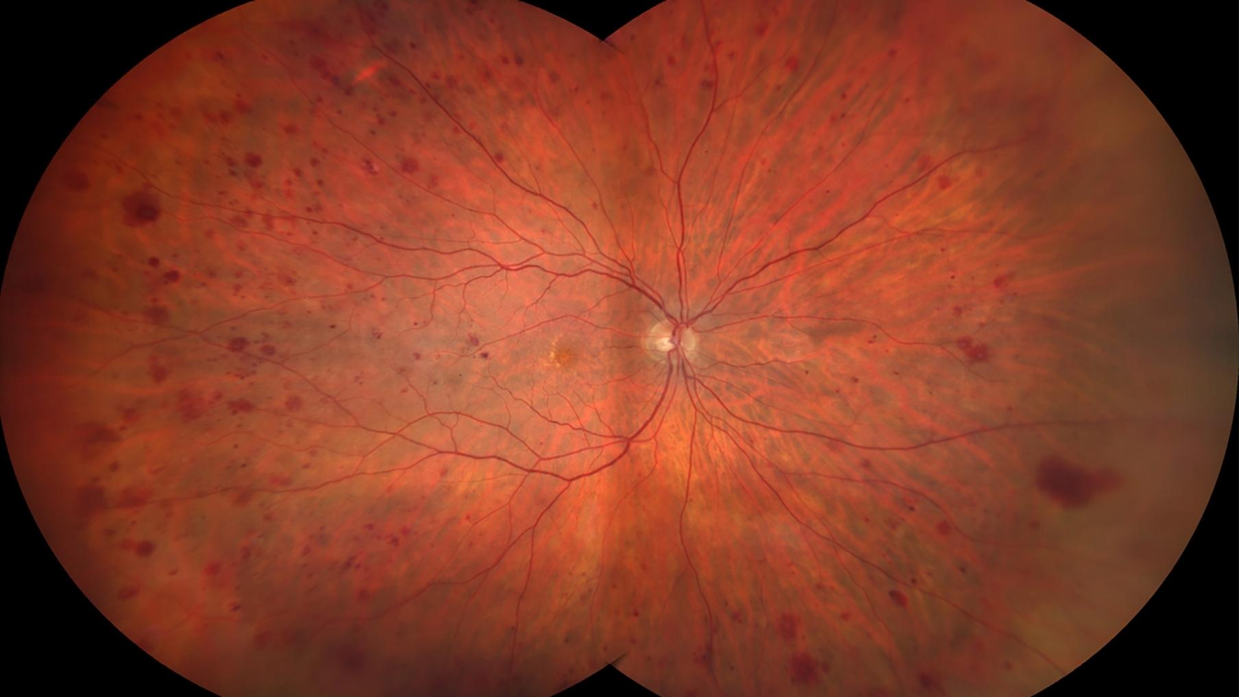 diabetic retina