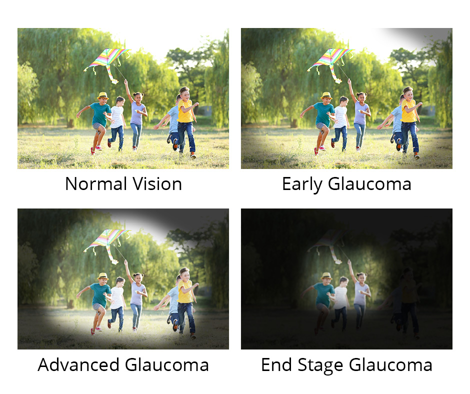 RichieEyecare GlaucomaImage Concept
