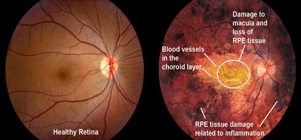 GVS retinal