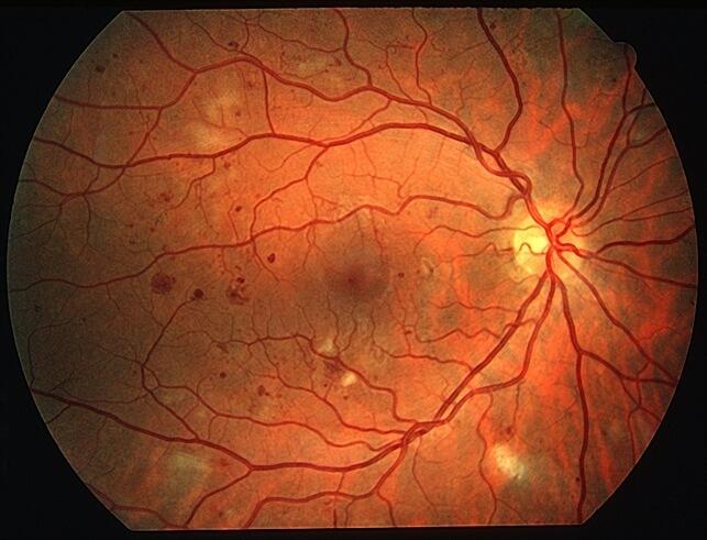 Retina Diabetes NPDR
