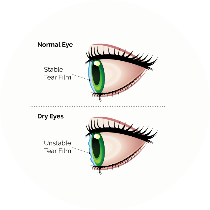 dry eye syndrome diagram