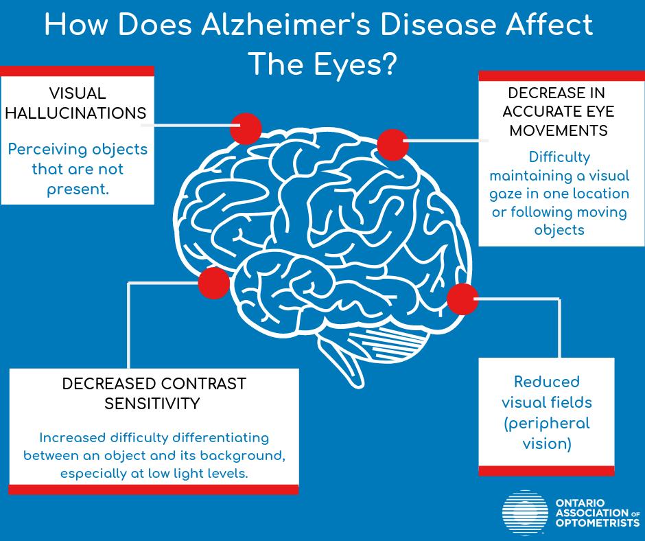 Alzheimers graph