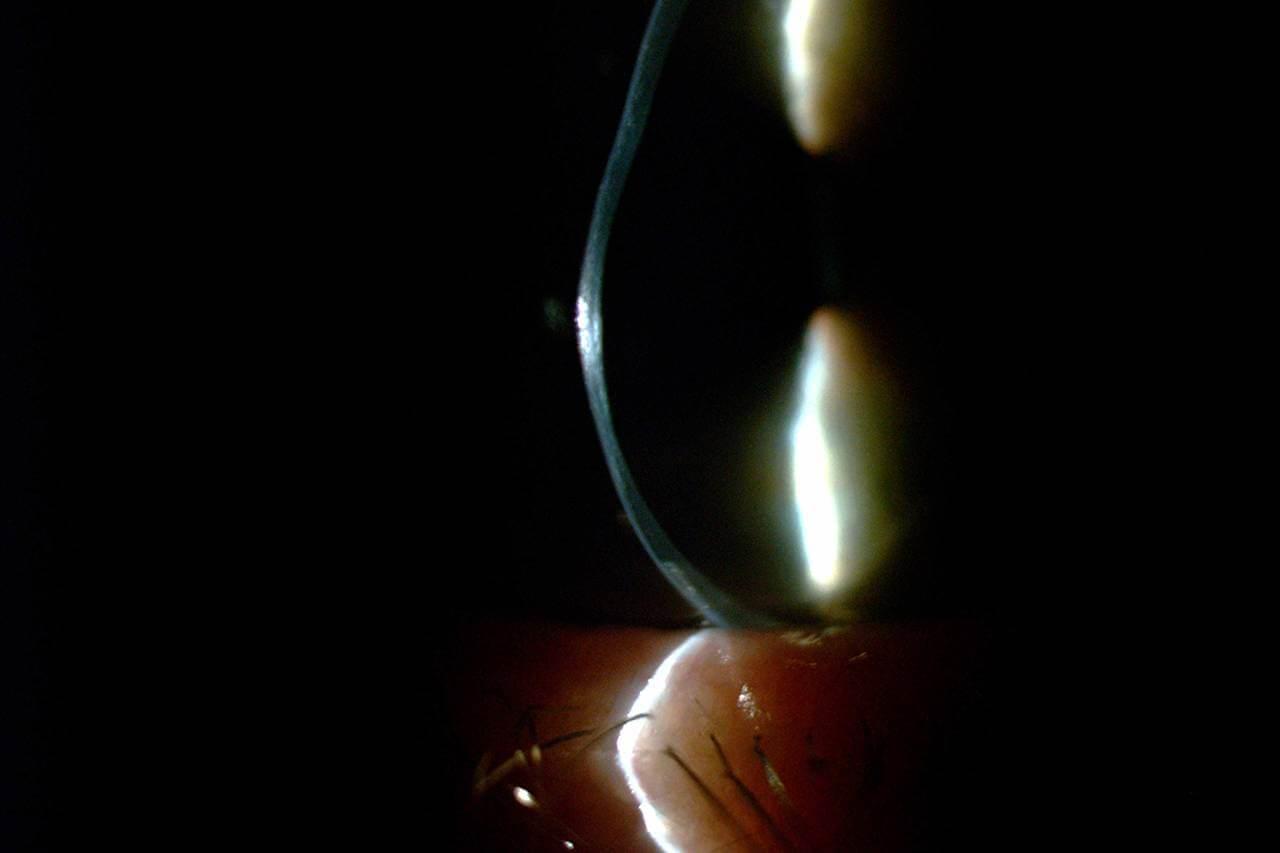 Keratoconus Profile 1280×853